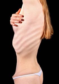 Spiseforstyrrelser rammer oftest unge kvinner. Foto: Baloncici, iStockphoto