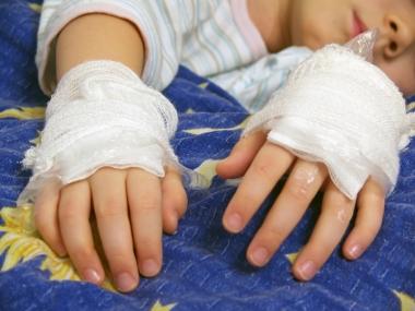 Brente barn får nå psykiatrisk hjelp. ill.foto: xril, istockphoto