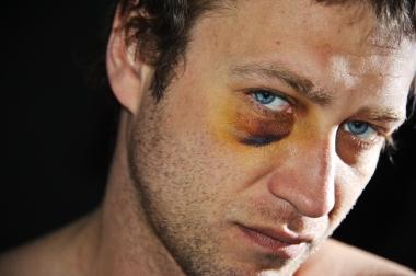 ung mann med blåveis