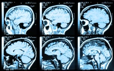 MRI-bilder av hjerne